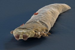 Клещ Demodex
