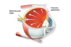 Схематическое изображение глазного давления
