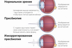 Зрение при пресбиопии
